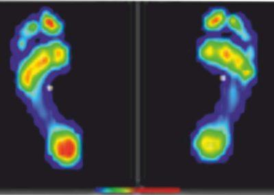 analisi baropodometrica alcamo